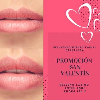 Rejuvenecimiento Facial Barcelona Promocion San Valentín Relleno de Labios