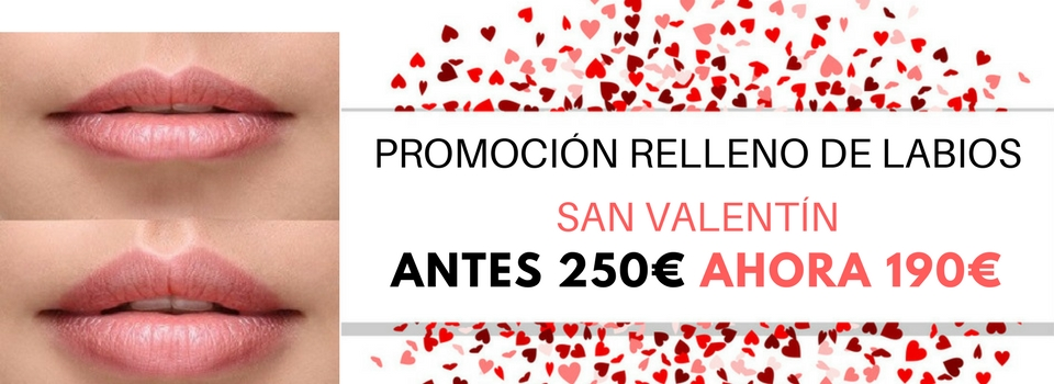 Promoción-Relleno-de-Labios-San-valentín-Rejuvenecimiento-Facial-Barcelona1