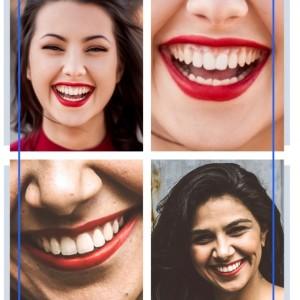 Sonrisa Gingival Rejuvenecimiento Facial Barcelona, Toxina Botulínica para mejorar Sonrisa Gingival