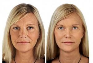 Rejuvenecimiento Facial Barcelona promociones surcos nasogenianos consigue tu mejor imagen